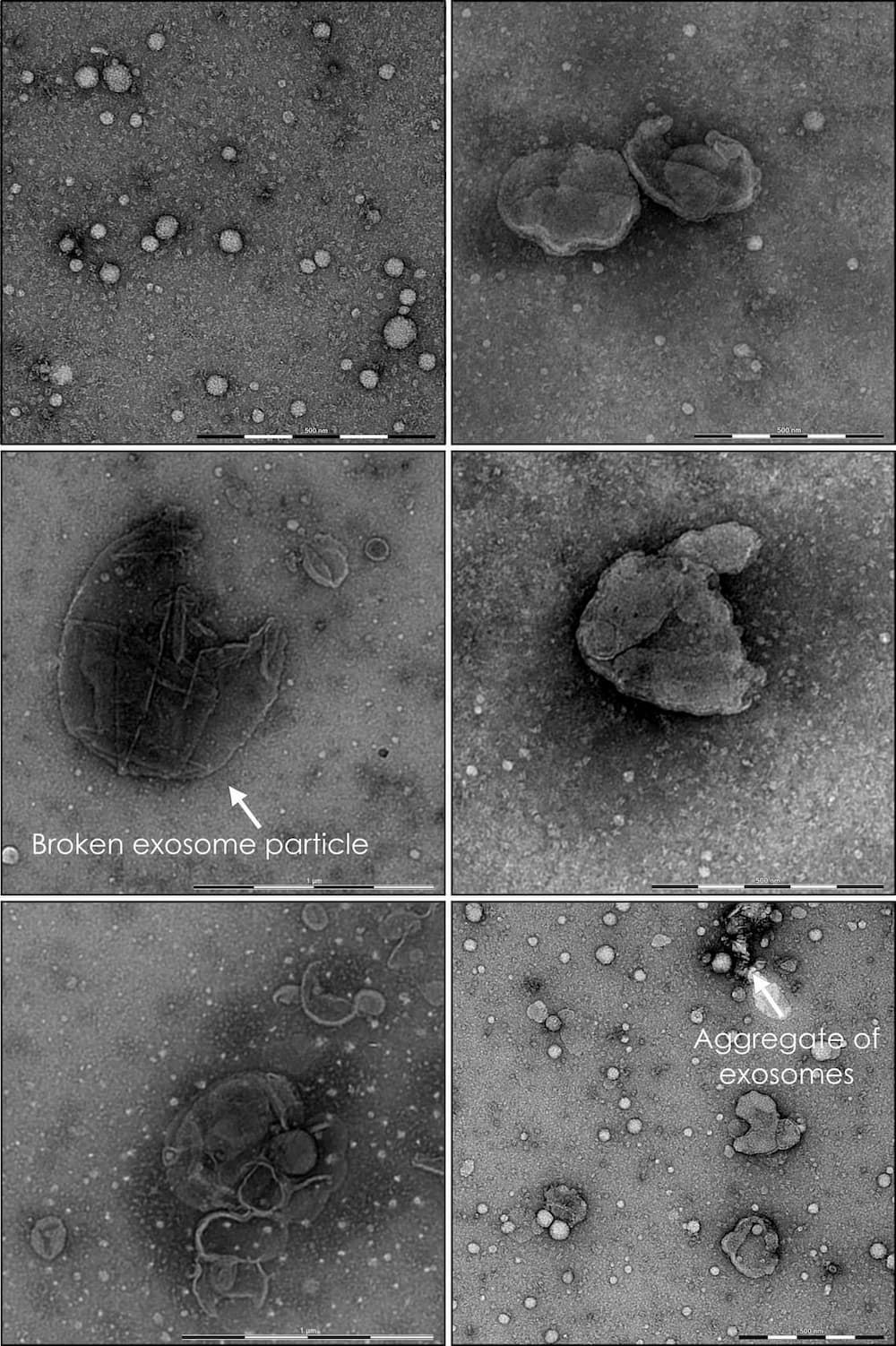 Several images of exosomes samples imaged using the nsTEM technique.