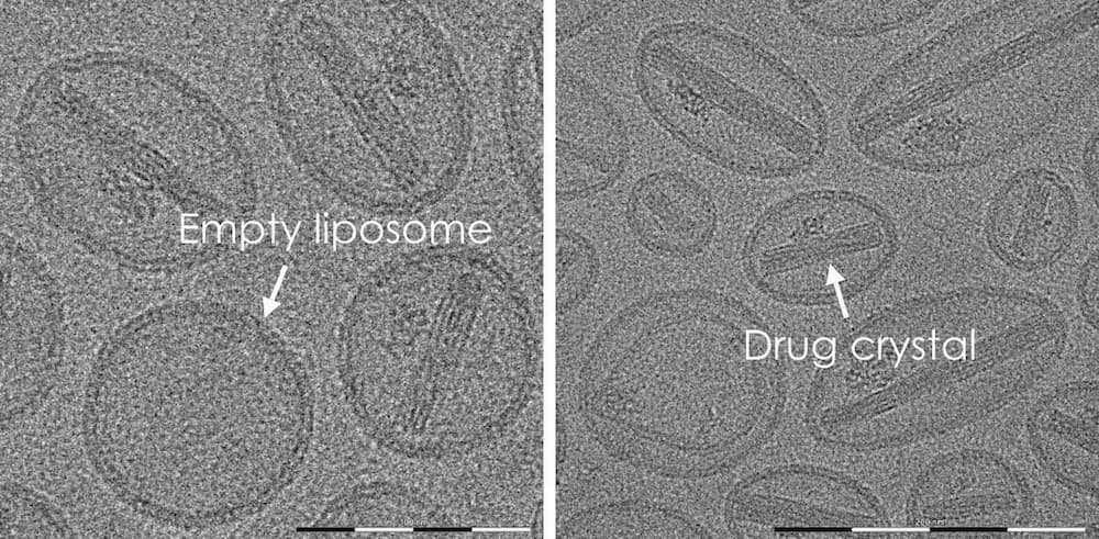 Two images showing an empty liposome and a drug crystal which have been found with our software
